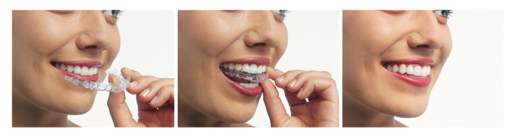 Trio of images of a woman inserting clear aligner trays used for Invisalign
