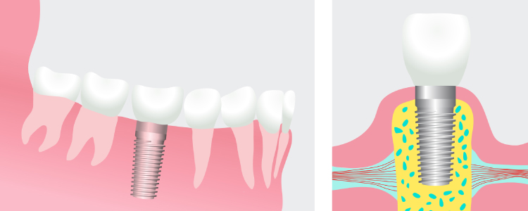 Artistic rendering of a dental implant showing the titanium post fused to the jawbone and topped with a restoration