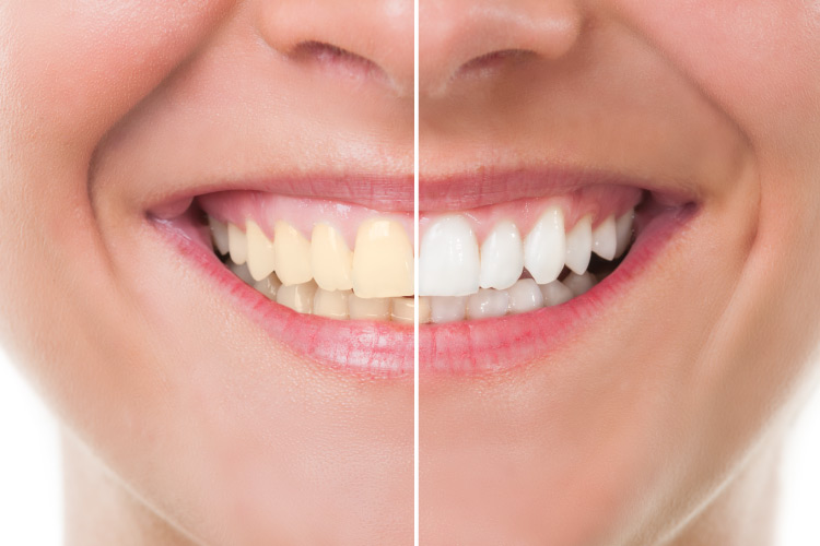 Smile with left half yellowed and right half white after teeth whitening